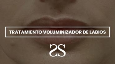 Antes y después de tratamiento voluminizador e hidratante de labios con ácido hialurónico